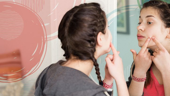 6 Teen Acne Treatment Dos and Don'ts | Everyday Health